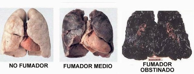 pulmones negros efecto cigarrillo salud