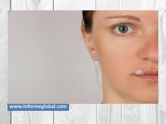Herpes Simplex: Tipos, Causas, Síntomas y Diagnostico