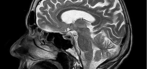 Adelgazamiento cortical efecto cigarrillo salud